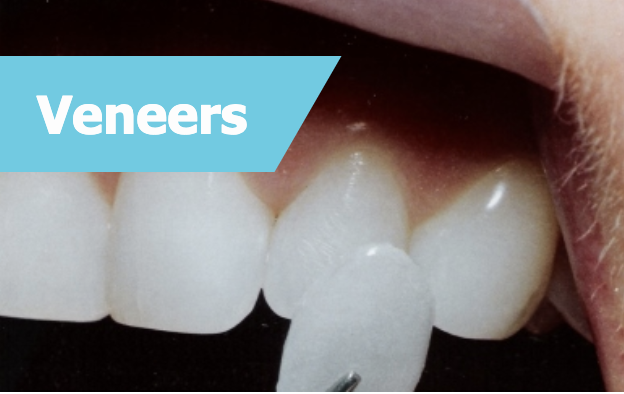 Dental Veneer In Eatons Hill
