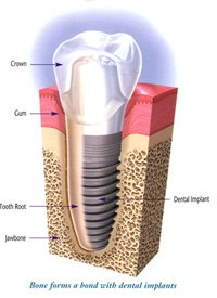 dental implants in eatons hill