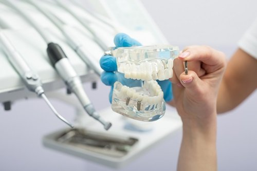 dental implant treatments in Brendale