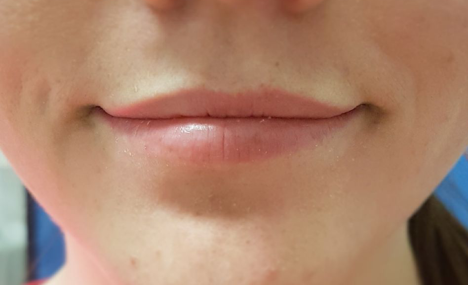 Botox and fillers in Eatons Hill | Emergency Dentist in ...