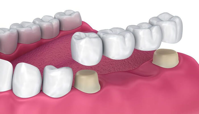 dental bridges in eatons hill