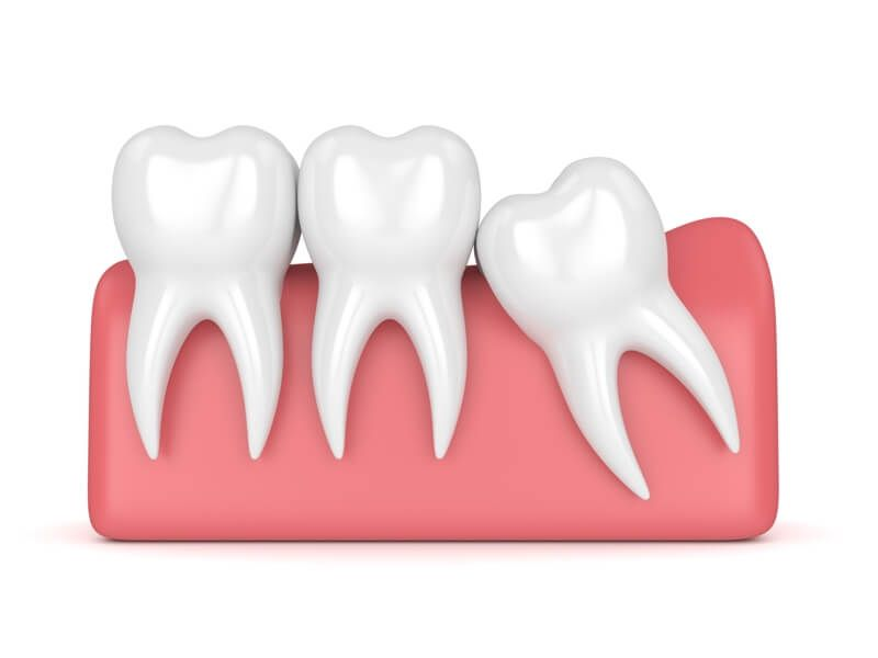 Oral surgery in eatons hill